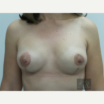 35-44 year old woman treated with Breast Lift with Implants after 3094328