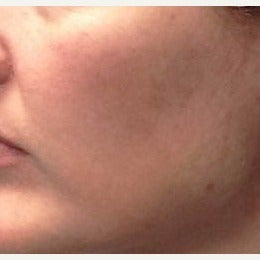 35-44 year old woman treated with Melanage Mini-Peel Melasma Treatment after 2081928