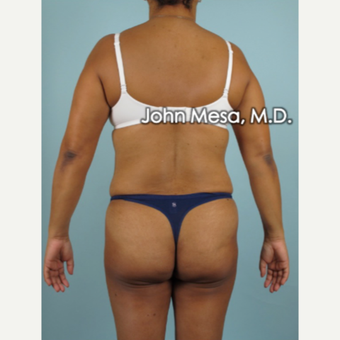 45-54 year old woman treated with Brazilian Butt Lift before 3777633