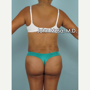 45-54 year old woman treated with Brazilian Butt Lift after 3777633