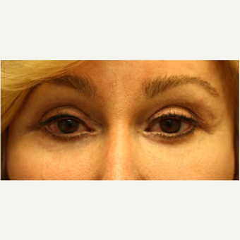 65-74 year old woman treated with Eyelid Surgery after 3139469