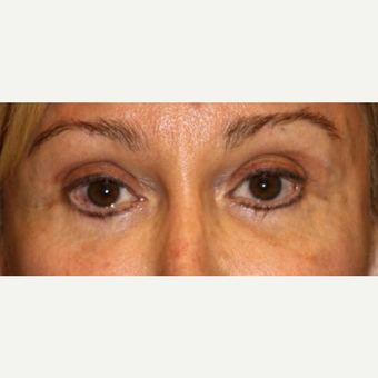 65-74 year old woman treated with Eyelid Surgery before 3139469