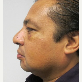 Rhinoplasty after 2993722