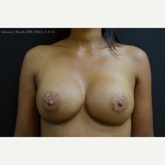 35-44 year old woman with Breast Cancer following Breast Reconstruction after 1541561