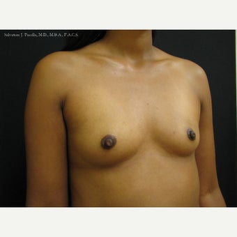 35-44 year old woman with Breast Cancer following Breast Reconstruction 1541561
