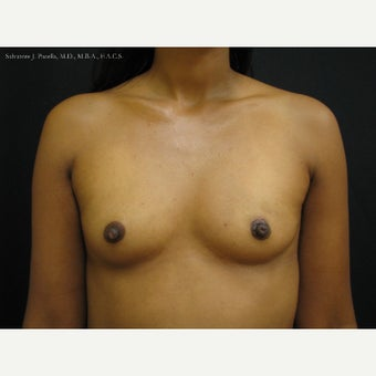35-44 year old woman with Breast Cancer following Breast Reconstruction before 1541561