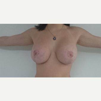 18-24 year old woman treated with Breast Lift after 3410967