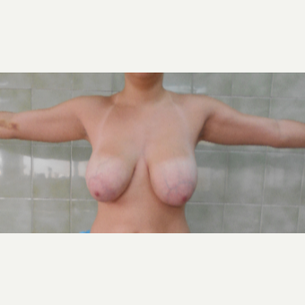 18-24 year old woman treated with Breast Lift before 3410967