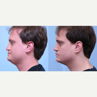 25-34 year old man treated with Rhinoplasty before 3748993