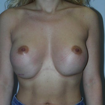 18-24 year old woman treated with Breast Implant Revision before 1659651