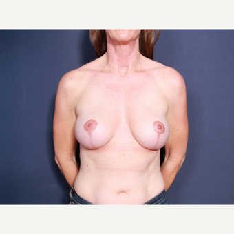 45-54 year old woman treated with Breast Lift with Implants (view 1 of 2) after 3658094