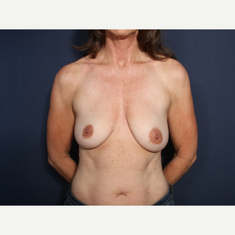45-54 year old woman treated with Breast Lift with Implants (view 1 of 2) before 3658094
