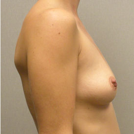 Breast Augmentation before 3681119