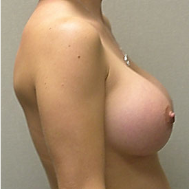 Breast Augmentation after 3681119