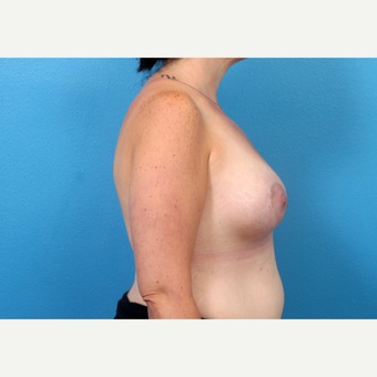 25-34 year old woman treated with Breast Augmentation after 3246948