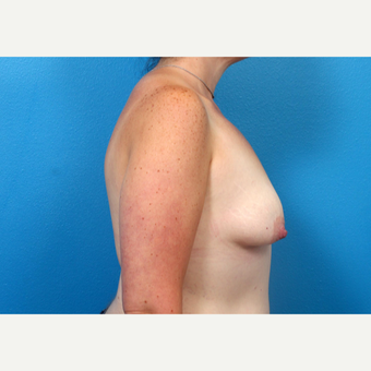 25-34 year old woman treated with Breast Augmentation before 3246948