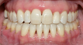 Adult Orthodontic treatment after 223627