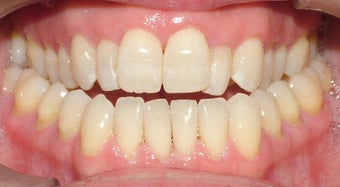 Adult Orthodontic treatment before 223627