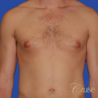 Male breast reduction performed to get rid of puffy nipples before 3502243