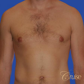 Male breast reduction performed to get rid of puffy nipples after 3502243