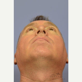 35-44 year old man treated with Rhinoplasty after 3391982