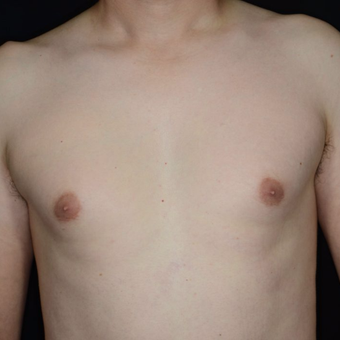 25-34 year old woman treated with Male Breast Reduction before 3099170