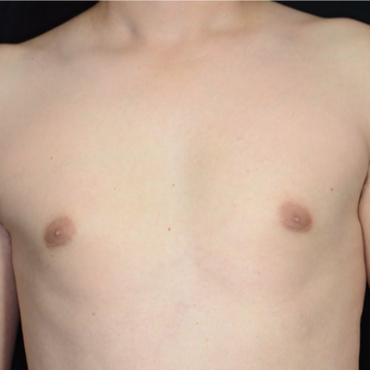 25-34 year old woman treated with Male Breast Reduction after 3099170