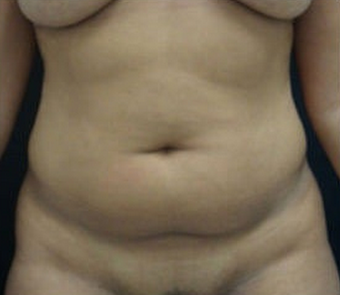 18-24 year old woman treated with Tummy Tuck before 1765844