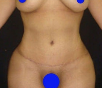 18-24 year old woman treated with Tummy Tuck after 1765844