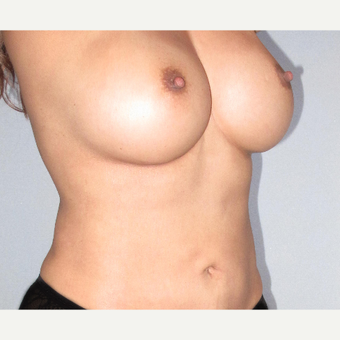 35-44 year old woman treated with Breast Augmentation after 3207500