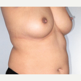 35-44 year old woman treated with Breast Augmentation before 3207500
