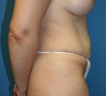 45-54 year old woman treated with Tummy Tuck before 3201218