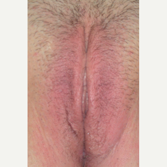 35-44 year old woman treated with Vaginal Rejuvenation after 2863804