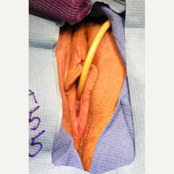 35-44 year old woman treated with Vaginal Rejuvenation before 2863804