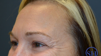 35-44 year old woman treated with Botox