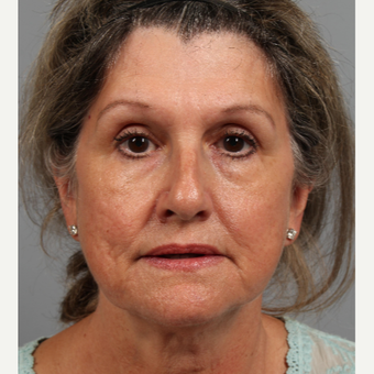 55-64 year old woman treated with Facelift before 3343730