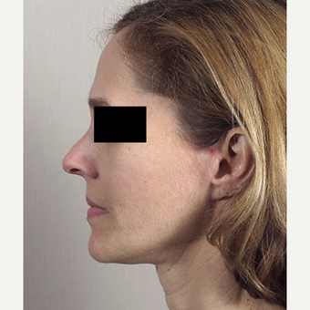 45-54 year old woman treated with Facelift after 3213128