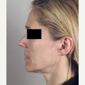 45-54 year old woman treated with Facelift before 3213128