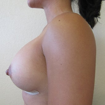 35-44 year old woman treated with Mentor Breast Implants after 2596203