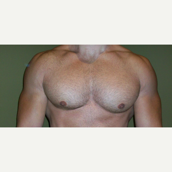 25-34 year old man treated with Male Breast Reduction after 3625251