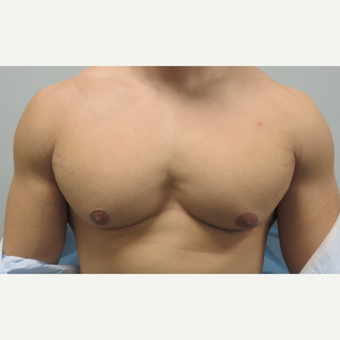 25-34 year old man treated with Male Breast Reduction before 3625251