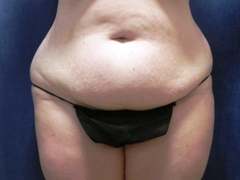 Tummy Tuck before 1072668