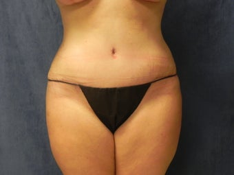 Tummy Tuck after 1072668