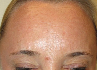 54 year-old female treated with Botox for frown lines after 989331