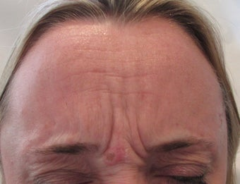 54 year-old female treated with Botox for frown lines before 989331