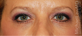 Eye Bag Surgery after 886789
