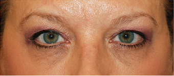 Eye Bag Surgery before 886789