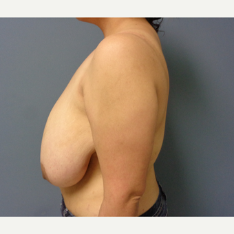 35-44 year old woman treated with Breast Reduction before 3493307