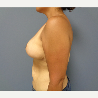 35-44 year old woman treated with Breast Reduction after 3493307