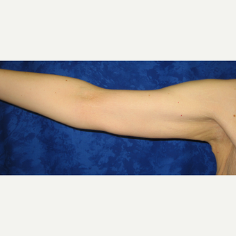 18-24 year old woman treated with Arm Lift after 3306151